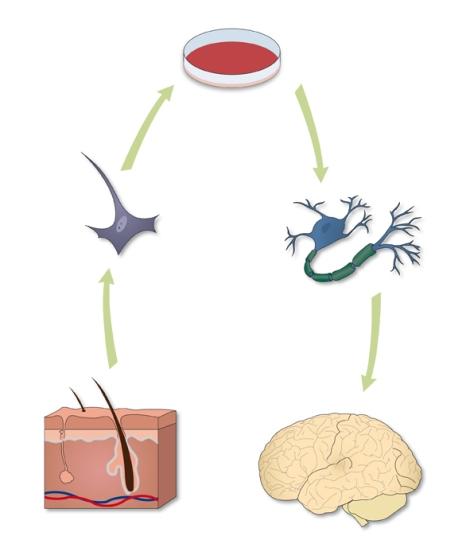 Vemos como con una célula extraída del tejido epitelial (fibroblasto) podemos conseguir, tras un proceso de ingeniería genética, una neurona funcional que puede ser utilizada en terapia celular para determinadas enfermedades neurodegenerativas