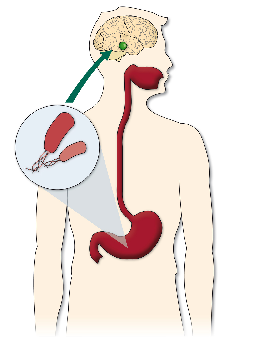 helicobacter pylori puede causar perdida de peso